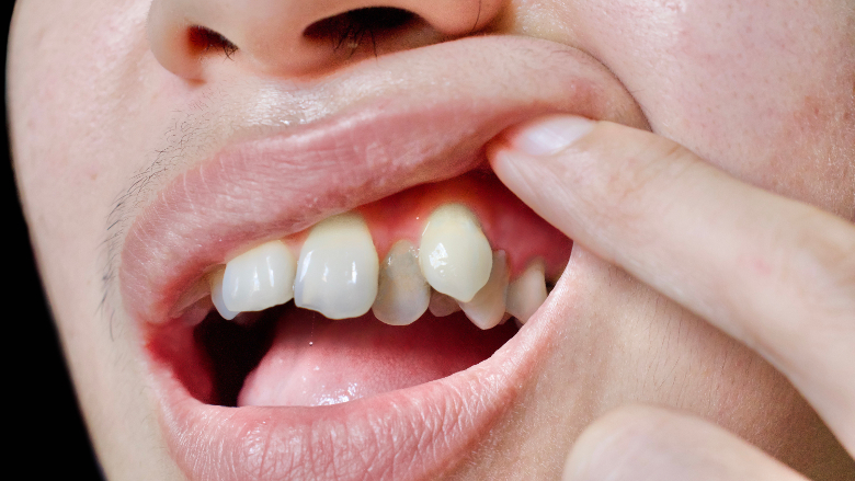 China emerging as key orthodontics and clear aligner market