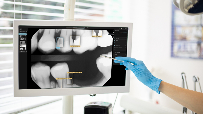 Second Opinion, please: AI-assisted dental radiology tool approved for Australia and New Zealand
